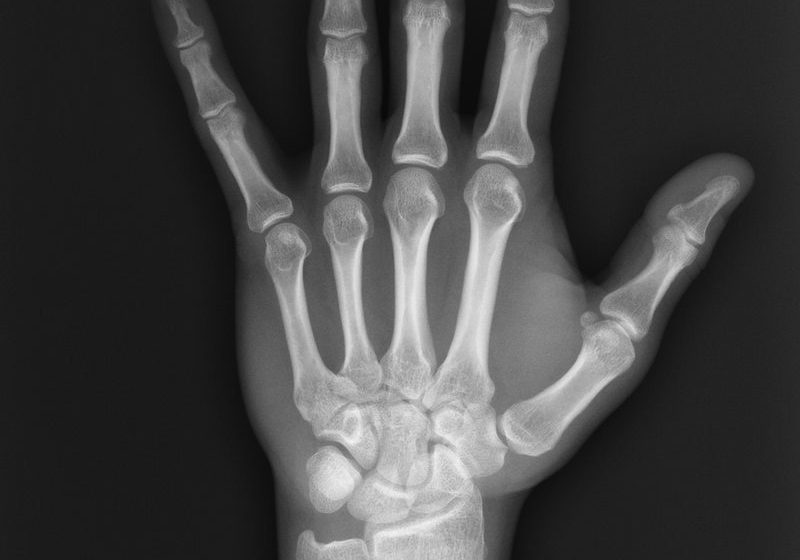 the-history-of-x-ray-technology